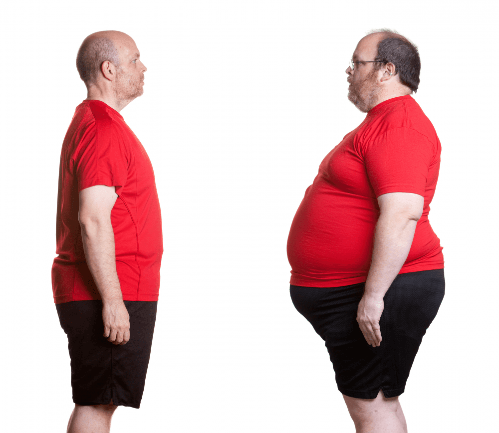 Surgical Weight Loss-fat man-Change weight