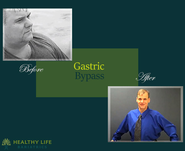 Before and after Gastric Bypass Surgery- California