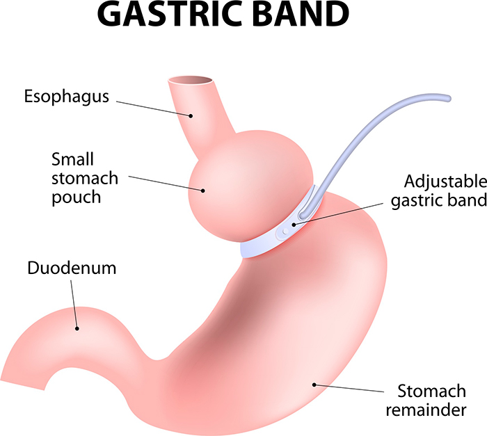 Gastric Band-Lap Band