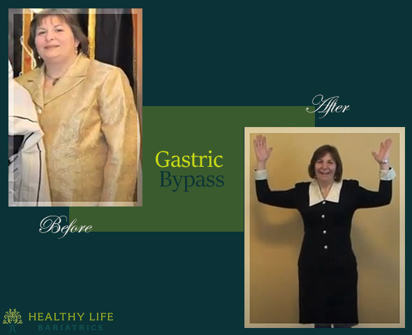 Gastric Bypass Patient Before and After