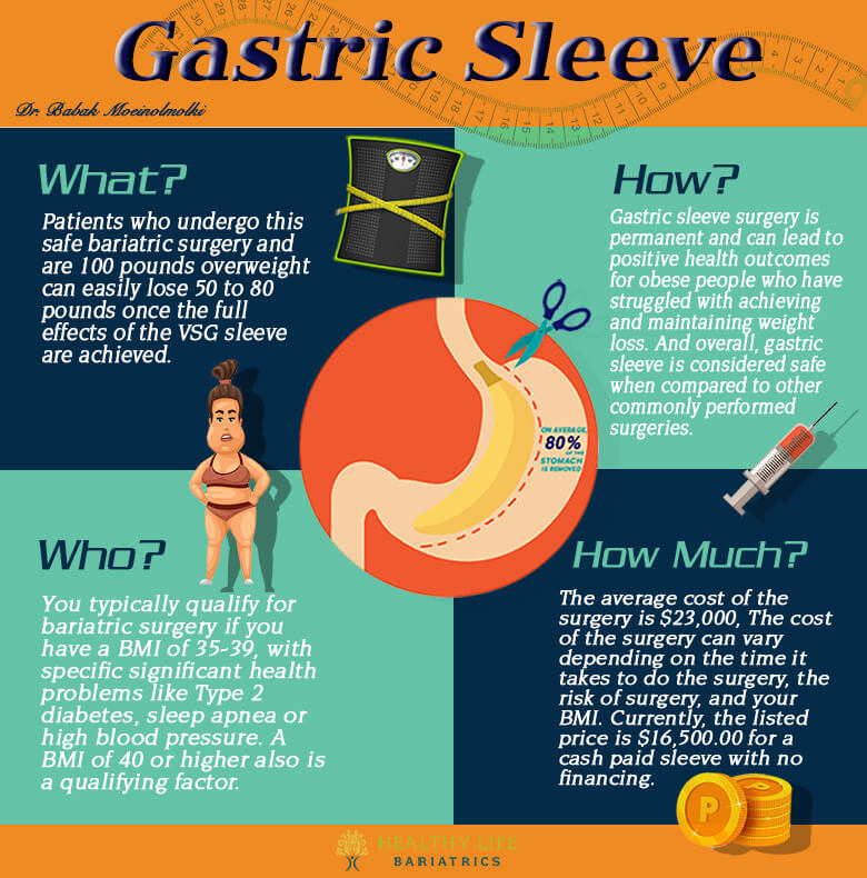 Gastric Sleeve infographic in Los Angeles CA