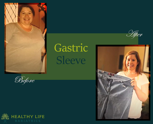 gastric sleeve surgery before and after- Los Angeles CA