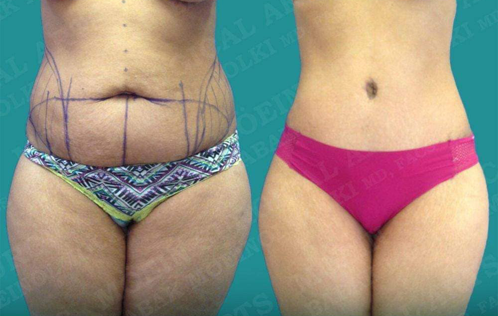 tummy tuck and liposuction- babek moeinolmolki