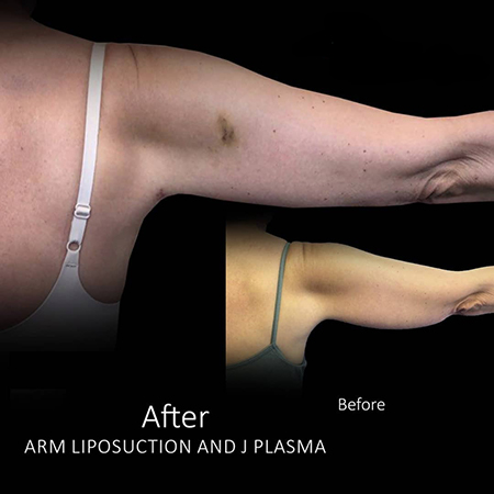 Arm Reduction, Arm Liposuction