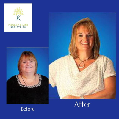 Before and after image of Gastric Bypass