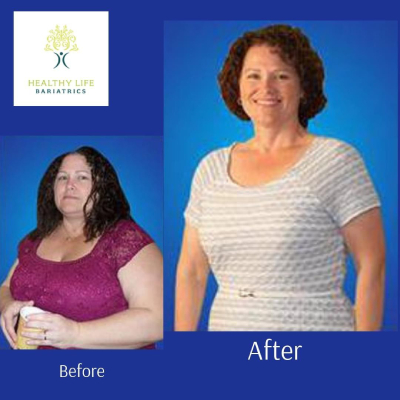 Before and after images of Sleeve Gastrectomy procedure