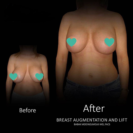 Breast Lift, Breast Augmentation, Breast Reduction-1