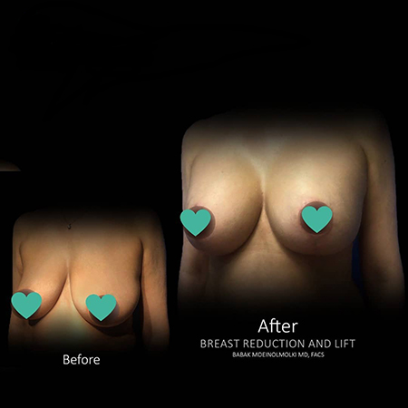Breast Lift, Breast Augmentation, Breast Reduction-2
