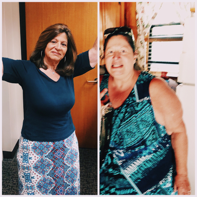Gale R. Weightloss Transformation Journey before after