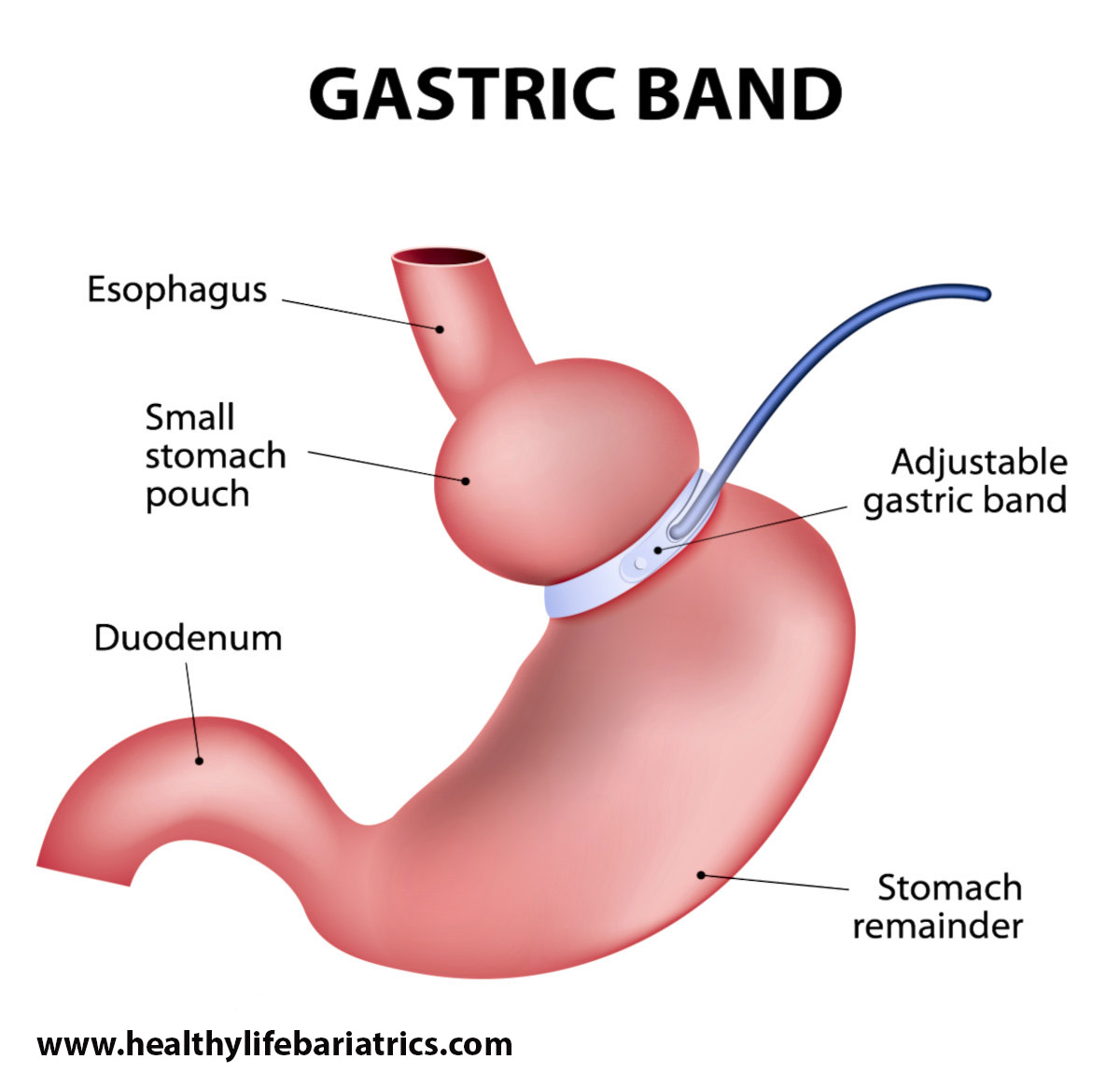 The procedure for removing the Lap-Band - Gastric Band to Gastric Sleeve