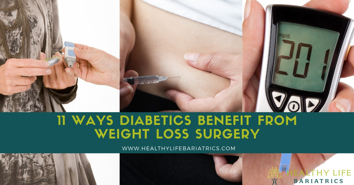 11 Ways Diabetics Benefit from Weight Loss Surgery