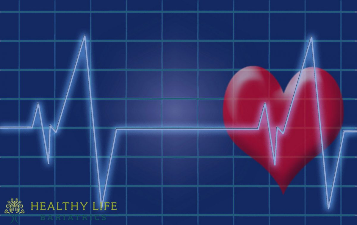 Lower Risk of Heart Disease and Early Death with weight loss surgery