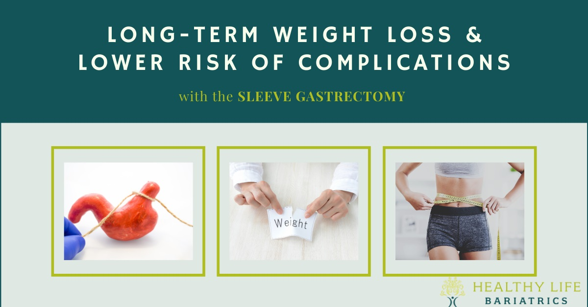 Long Term Weight Loss by Gastric Sleeve
