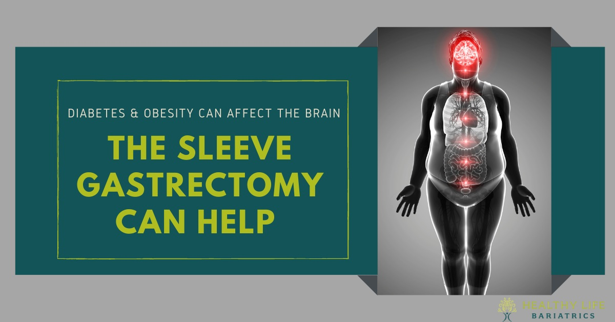 Sleeve Gastrectomy to cure Diabetes and Obesity