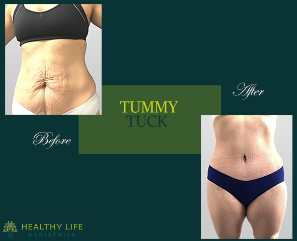 Before & After Tummy Tuck in Los Angeles CA