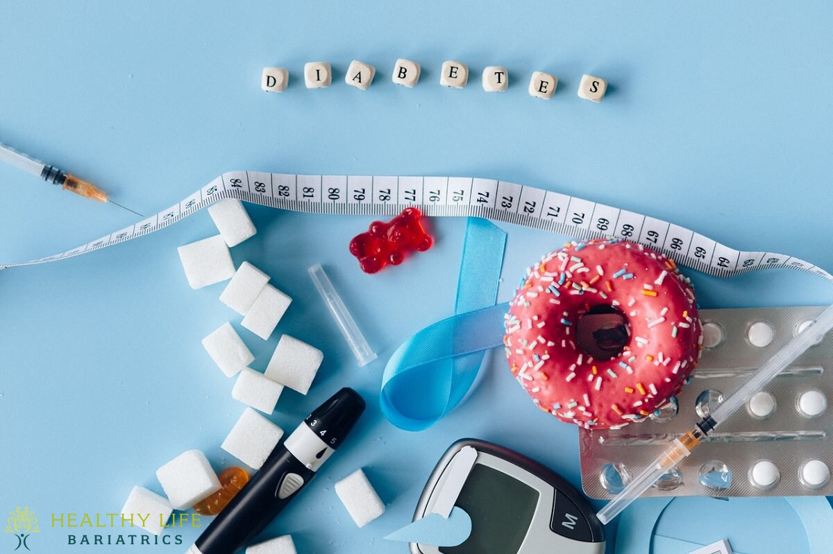 insulin and gastric sleeve in Los Angeles CA